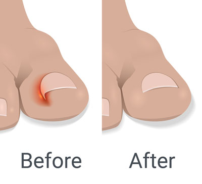 Ingrown toenail - Before and After